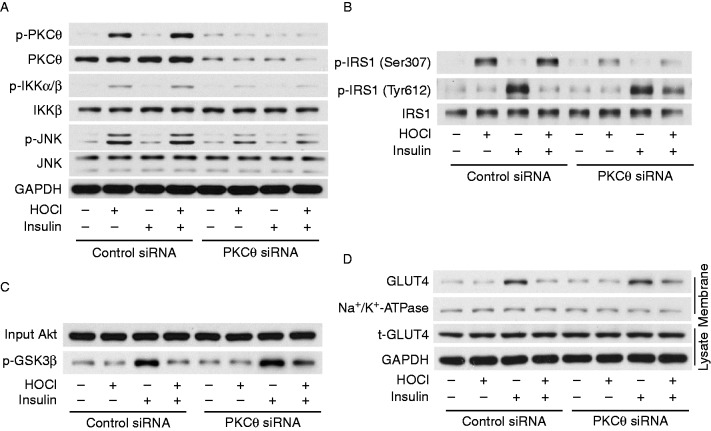 PKCθ mediates phosphorylation of IKK, JNK, and IRS1 and insulin resistance. 3T3-L1 adipocytes were transfected with PKCθ siRNA or control siRNA for 48 h and treated with 200 μmol/l HOCl for 1 h and subsequently stimulated with 100 nmol/l insulin for 15 min or left unstimulated. Western blot analysis of protein expression and phosphorylation of PKCθ, IKK, JNK, and IRS1 (A and B). Akt kinase activity in cell lysates was measured (C). The membrane fraction was isolated and proteins were subjected to SDS–PAGE and immunoblotted with GTLU4 antibody (D). The blots are representative of results obtained from five independent experiments.