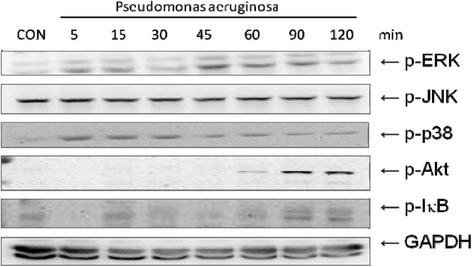 The proteins expression of intracellular signaling pathways in P. aeruginosa -infected SW480 cells. SW480 cells were left uninfected (CON), or infected with wild-type P. aeruginosa strain PAO1 for the times indicated. Activation of the ERK, JNK, p38, Akt and IκB were analyzed in whole cell protein by immunoblotting with antibodies to phosphorylated (p) ERK, JNK, p38, Akt and IκB. The results shown are representative of three separate experiments. GAPDH worked as a normalization of cytosolic protein.