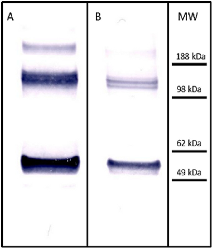 Western-blot analysis of the presence of NP in Pandemrix and Arepanrix H1N1 antigen suspension. Pandemrix and Arepanrix H1N1 antigen suspensions were run under reducing conditions and NP stained with monoclonal mouse NP-antibody (Sino Biologicals Inc., China).