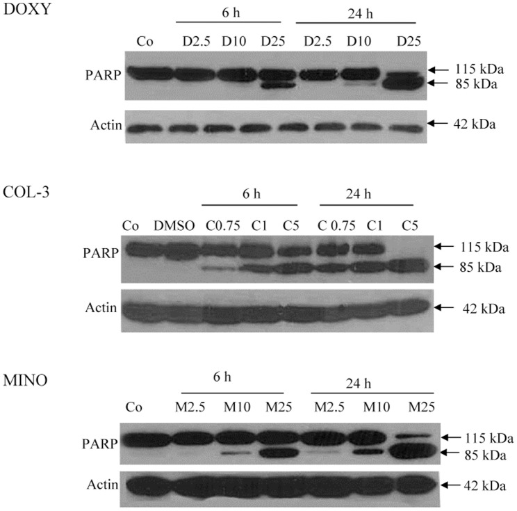 TCNAs-mediated poly (ADP-ribose) polymerase-1(PARP-1) cleavage. HL-60 cells were treated with DOXY or MINO in final concentrations of 2.5, 10 and 25 µg/ml or COL-3 in final concentrations of 0.75, 1 and 5 µg/ml for 6 and 24 h. Cells incubated with DMSO in a final concentration of 0.2% served as controls for solvent toxicity, cells incubated with complete medium served as controls. The pattern of PARP-1 cleavage was assessed using WB. Actin was used as a control for equal protein loading. Co: control, D: DOXY, M: MINO and C: COL-3.