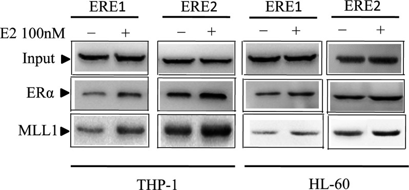 E2-dependent recruitment of ERa and MLL1 in ERE1 and ERE2 of the HOXA10 promoter HL-60 and THP-1 were treated with 100 nM E2 for 8 h. Afterwards, the control and E2-treated cells were subjected to ChIP analysis using antibodies against MLL1 and ERα. β-Actin antibody was used as control IgG. The immunoprecipitated DNA fragments were PCR amplified using primers specific for ERE1 and ERE2 of the HOXA10 promoter.