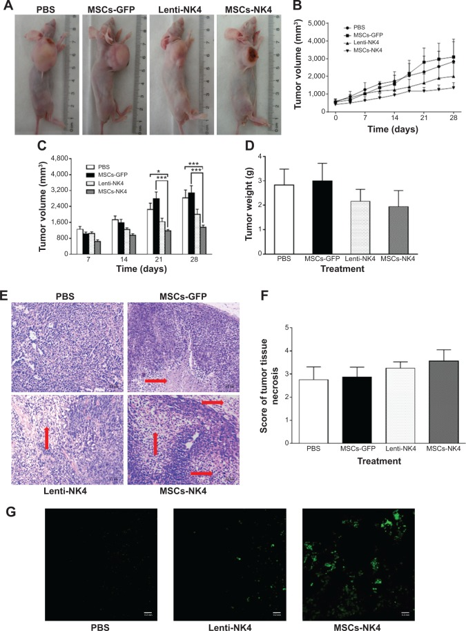 Effects of systemic administration of PBS, MSCs-GFP, Lenti-NK4, or MSCs-NK4 on the growth of gastric tumor xenografts over 28 days in BALB/C nude mice. Notes: Tumor-bearing BALB/C nude mice were injected with MSCs-GFP or MSCs-NK4 (6×10 5 cells in 0.2 mL PBS), Lenti-NK4 (3×10 7 viral particles), or PBS (0.2 mL) in the lateral tail vein for systemic administration at 1, 7, 14, and 21 days (eight animals per group). Three different diameters of each tumor were measured twice a week. Animals were sacrificed on the 28th day after injections, tumor xenografts were excised and weighed. ( A ) Representative tumor-bearing mice treated with PBS, MSCs-GFP, Lenti-NK4, or MSCs-NK4, ( B ) the growth curve of tumor xenografts in nude mice. The mice injected with MSCs-NK4 exhibited obvious inhibition of tumor xenograft growth compared to other treatment groups. ( C ) Tumor volume at days 7, 14, 21, and 28 in mice injected with PBS, MSCs-GFP, Lenti-NK4, or MSCs-NK4. The tumor volume in mice treated with MSCs-NK4 was smallest among all groups. ( D ) Tumor weight in nude mice at day 28 after treatment with PBS, MSCs-GFP, Lenti-NK4, or MSCs-NK4. Tumor burden in MSCs-NK4 treated mice was lower than mice treated with PBS or MSCs-GFP. ( E ) Histological score of necrosis in tumor xenografts in nude mice treated with PBS, MSCs-GFP, Lenti-NK4, or MSCs-NK4. The tumor necrosis scores in MSCs-NK4 treated mice were highest among all treatment groups. ( F ) H E staining of tumor tissues observed by light microscopy where tumor necrosis areas are indicated by arrows, and ( G ) presence of MSCs-NK4 in tumor tissues in vivo after nude mice were injected with MSCs-NK4 via the tail vein. Tumor xenografts were snap-frozen, cryosectioned and then examined under fluorescent microscope. * P