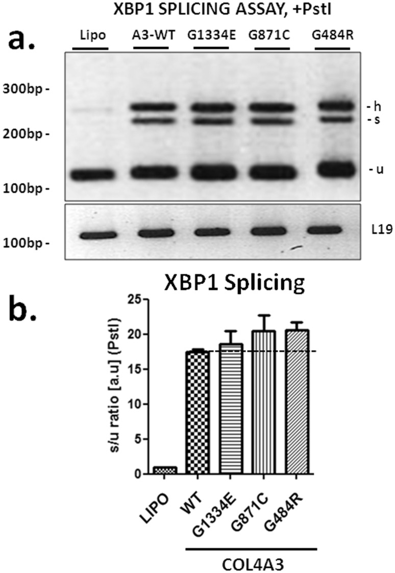 Overexpression of wild type or mutant COL4A3 chains induces XBP1 splicing in AB8/13 cells. (a) Representative experiment of reverse transcription-PCR using XBP1 mRNA as template, from AB8/13 cells transiently expressing COL4A3 -WT (A3/WT) or the mutant chains G1334E, G871C, G484R ( COL4A3 ). PCR products were run on 3% agarose gel. It is apparent that over-expression of all chains induces XBP1 splicing, as evidenced by the appearance of the spliced band (s) when the PCR product is cut with the restriction enzyme Pst1. (h) hybrid, (u) unspliced (b) RT-PCR is quantified via densitometric analysis of the bands after PstI digestion as follows: ratio of the spliced band and the sum of the two PstI digest bands (s/(u1+u2), with PstI digestion. Hybrid band (h) was considered as equally contributing to unspliced and spliced bands. There is statistically significant XBP1 splicing when either WT or any of the mutant chains is overexpressed in AB8/13 cells. L19 was used as an internal PCR control. Data are means ± SEM of three independent experiments.