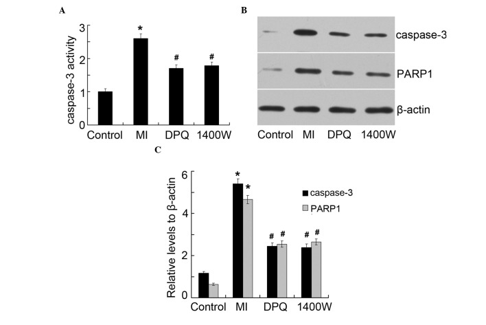 The protein expression levels of cleaved caspase-3 and cleaved poly (ADP-ribose) polymerase (PARP). (A) Caspase-3 activity of cardiomyocytes in the various groups. (B) The protein expression levels of cleaved caspase-3 and cleaved PARP, as determined by western blot analysis. (C) Quantitative analysis of cleaved caspase-3 and cleaved PARP, normalized to β-actin. * P