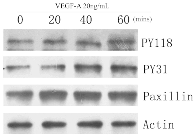 VEGF-A induces the phosphorylation of paxillin in HUVECs. The HUVECs were treated with 20 ng/ml VEGF-A for 0, 20, 40 and 60 min. Western blot analysis was performed to assess the phosphorylation of paxillin phosphorylated at PY118 and PY31 as well as total paxillin protein. Actin was used as a loading control. VEGF-A, vascular endothelial growth factor A; HUVECs, human umbilical vein endothelial cells. PY118, tyrosine 118; PY31, tyrosine31.