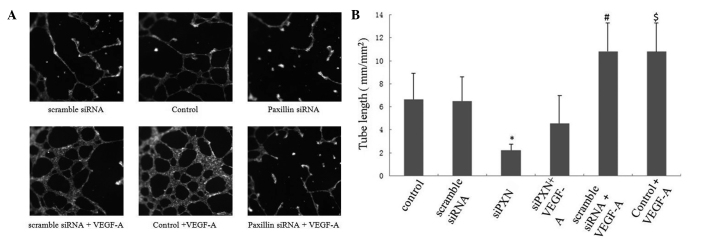 Tube formation of HUVECs is inhibited by siRNA-mediated paxillin knockdown. The HUVECs were seeded onto Matrigel 48 h after being either mock-transfected or transfected with scramble siRNA or siPXN-1, respectively. VEGF-A (20 ng/ml) was added to the medium. (A) Photomicrographs of the tubes; (B) Tube length was calculated using the Image-Pro Plus image processing system. Three independent experiments were performed. * P