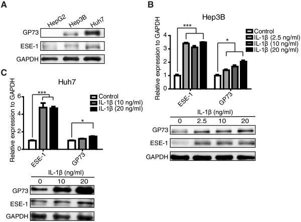 ESE-1 and GP73 expressions were induced by IL-1β stimulation in vitro . (A) The basal levels of ESE-1 and GP73 expressions in HepG2, Hep3B, and Huh7 cells were analyzed by conducting Western blot. (B) Hep3B cells were stimulated with different doses of IL-1β (2.5, 10, and 20 ng/mL) for 48 h. IL-1β-induced ESE-1 and GP73 mRNA and protein levels were analyzed by performing qPCR and Western blot. (C) Huh7 cells were stimulated with different doses of IL-1β (10 and 20 ng/mL) for 48 h. ESE-1 and GP73 mRNA and protein levels were analyzed with qPCR and Western blot. The values were normalized to GAPDH . Western blot was reprobed for GAPDH as a loading reference control.
