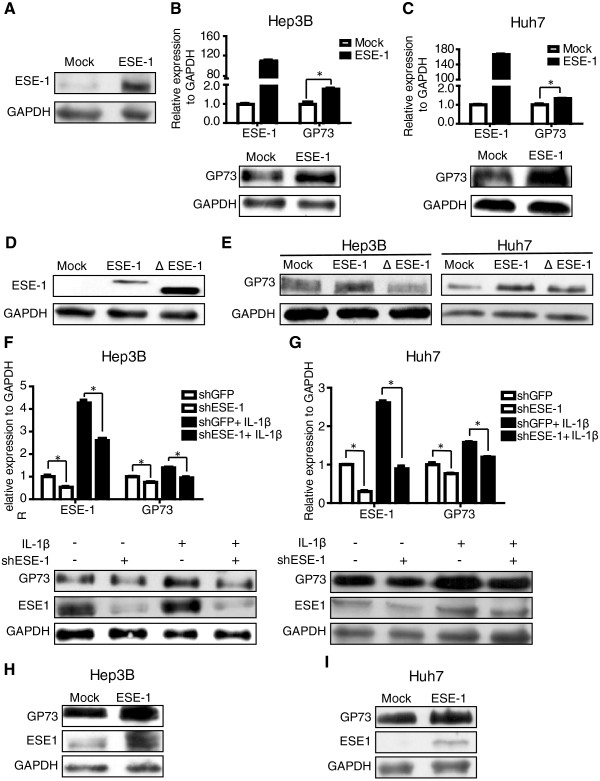 ESE-1 upregulated GP73 expression in HCC cells. (A) pCR3.1-ESE-1 plasmid was transfected into HEK293T cells and ESE-1 expression was tested by Western blot 36 h after transfection. (B) pCR3.1-ESE-1 plasmid was transfected into Hep3B cells for 36 h, and GP73 mRNA and protein levels were analyzed with qPCR and Western blot, respectively. (C) GP73 mRNA and protein levels were analyzed by adopting qPCR and Western blot in Huh7 cells transfected with pCR3.1-ESE-1 plasmid. (D) pCR3.1-ΔESE-1 plasmid with deletion ETS domain of ESE-1 was constructed and transfected into HEK293T cells. ΔESE-1 expression was confirmed by Western blot. (E) The empty vector (Mock) or ESE-1 or ΔESE-1 was transfected into Hep3B and Huh7 cells, and GP73 expression was tested by Western blot. (F) ESE-1 was downregulated in Hep3B and (G) Huh7 cells by infecting them with virus carrying the shRNA expression cassette against ESE-1 (shESE-1) or a non-target control (shGFP) with or without IL-1β stimulation. After 96 h, the mRNA and protein levels of ESE-1 and GP73 were analyzed with qPCR and Western blot, respectively. (H) Hep3B and (I) Huh7 cells infected with shESE-1 virus particles were transfected with pCR3.1-ESE-1 plasmid at 48 h post-infection. At 48 h after transfection, cells were harvested, and ESE-1 and GP73 proteins were analyzed with Western blot.