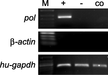 Co-culture of XENO-1 islets and HEK293 cells. Examination of PERV infectivity in Co-culture is demonstrated here where detection of PERV-pol mRNA in HEK-293 co-cultured with islets from xeno-1 animals by <t>RT-PCR.</t> M, 50 <t>bp-DNA</t> ladder; +, positive control, using DNA from HEK293 co-cultured with PK15; −, negative control, HEK293 cell cultured alone; co indicates HEK-293 cells co-cultured with XENO-1 islets.