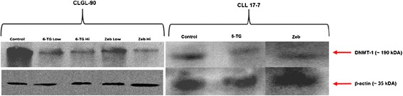 Western blot of DNMT1 expression. This image is a western blot of DNMT1 protein expression in CLGL 90 and CLL 17–7 cells treated with 1.5 μM or 6 μM 6-TG or 50 μM or 200 μM Zeb concentrations when compared to control. DNMT bands are evident at approximately 180,000 molecular weight. The treated groups had a reduction in intensity of DNMT1 expression as evident by bands in the 180 kDA region. Reduction in the expression of DNMT1 treated CLGL 90 cells (6-TG low, high and Zeb low, high groups) was 0.81, 0.76, 0.89, and 0.67 when compared to untreated control, respectively. Reduction in the expression of DNMT1 treated CLL 17–7 cells (6-TG and Zeb high dose) is 0.27 and 0.40, respectively. Loading control is Beta-actin.