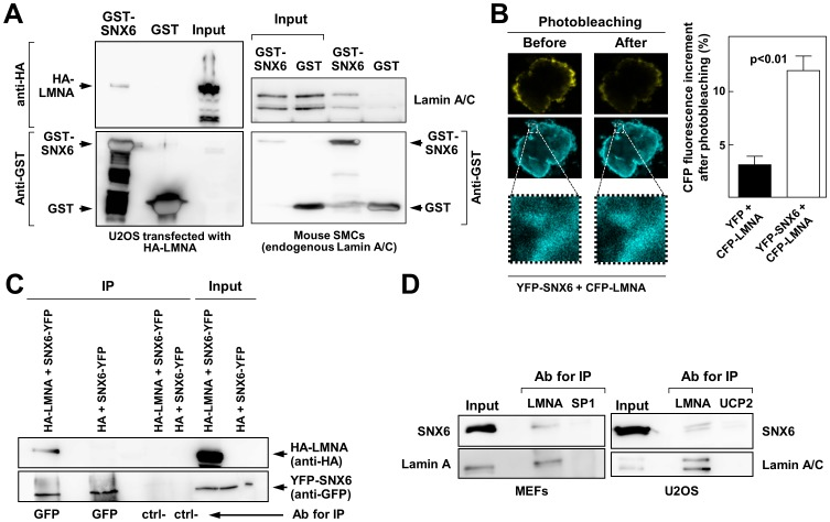 SNX6 interacts with lamin A/C in vitro and in vivo . ( A ) Cell extracts from U2OS cells overexpressing HA-lamin A (left) or mouse smooth muscle cells (SMCs) expressing endogenous lamin A (right) were subjected to pull-down with GST-SNX6 or GST alone. Pelleted material was probed by immunoblot with the indicated antibodies. Input lane corresponds to an aliquot of the total protein mixture before each pull down experiment. ( B ) In vivo interaction between SNX6 and lamin A was quantified by fluorescence resonance energy transfer (FRET) using the acceptor photobleaching method. Data in the graph represent the mean±SE of three independent experiments. The images show a representative example of cells cotransfected with YFP-SNX6 and CFP-LMNA before and after YFP photobleaching. ( C ) U2OS cells were transiently transfected with YFP-SNX6 together with either HA-lamin A or HA alone as indicated. Cell lysates were immunoprecipitated (IP) with anti-GFP antibodies or control immunoglobulins and immunocomplexes were further analyzed by immunoblotting with anti-HA (top blot) to visualize specific interactions or with anti-GFP (bottom blot) to validate the experimental procedure. Ctrl- indicates the use of unrelated antibodies for immunoprecipitation. ( D ) Interaction between endogenous lamin A and SNX6. Cell extracts from mouse embryonic fibroblasts (MEFs) and U2OS cells (right) were immunoprecipitated with antibodies against lamin A (LMNA) or against unrelated proteins (SP1 and UCP2). Samples were analyzed by Western blot with the indicated antibodies.