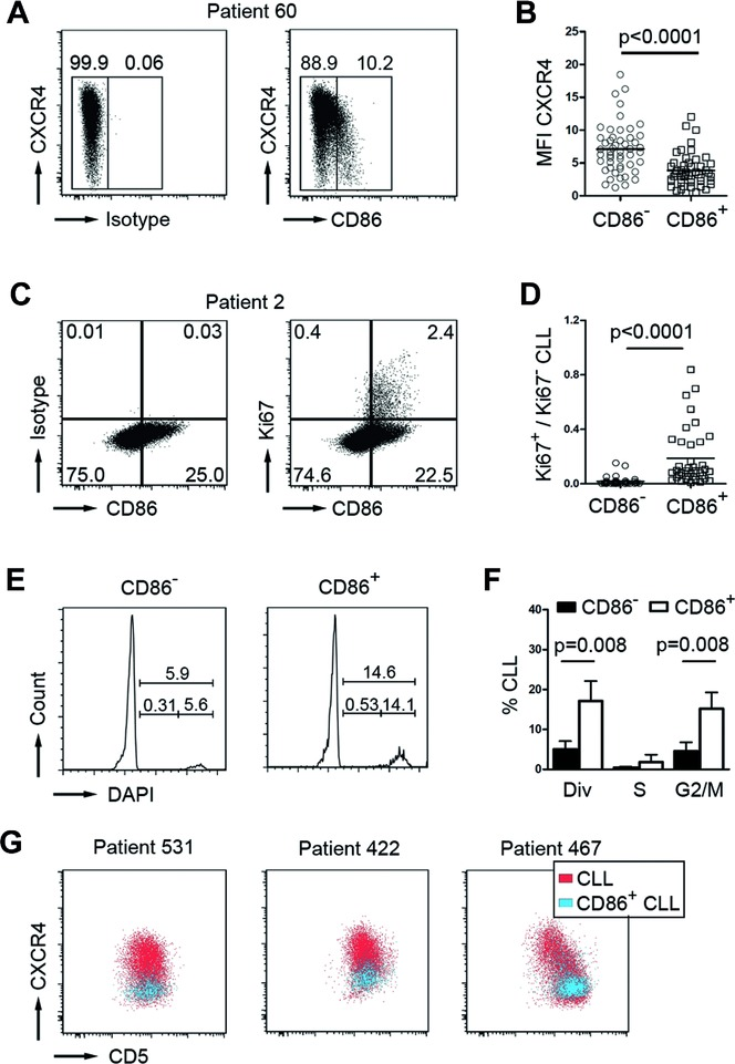 CD86 + cells represent the proliferative CLL fraction. (A) Representative flow cytometry profile of a CLL sample showing CXCR4 and CD86 expression on CD5 + CD19 + pregated CLL cells. Boxes and numbers in dot plots indicate gating for CD86 positive versus negative cells. Plots are representative of 50 independent experiments. (B) MFI values of CXCR4 + cells are quantified for CD86 – and CD86 + CLL cells (pregated for CD5 + CD19 + expression; each individual patient sample is represented by a single circle symbol (CD86 − fraction) and quadrant symbol (CD86 + fraction), n = 50; mean values shown as horizontal lines; p -value determined by paired t -test). (C) Representative flow cytometry profile for CD86/Ki67 coexpression on CD5 + CD19 + pregated CLL cells. Boxes and numbers in dot plots indicate percentages of cells within the respective quadrants. Plots are representative of 38 independent experiments. (D) The ratio of Ki67 + /Ki67 − CLL cells within CD86 − and CD86 + subsets was determined by flow cytometry based on the quadrant percentages shown in (C). Each individual patient sample is represented by a single circle symbol (CD86 − fraction) and quadrant symbol (CD86 + fraction), n = 38; mean values shown as horizontal lines; p -value determined by Mann–Whitney test. (E) Representative cell cycle profiles of CD86 − and CD86 + CLL fractions (pregated on CD5 + CD19 + cells) of patient ID 565, determined by DAPI DNA staining. Percentages are shown within the FACS graphs. Histograms are representative of five independent experiments. (F) Cell cycle profiles were analyzed by plotting the percentages of CLL cells within the respective cell cycle phase as determined in (E) for CD86 − (black bars) and CD86 + (white bars) CLL cells; (div = dividing cells in M/S/G2; n = 5; bars show means ± SD; p -values determined by Mann–Whitney test). (G) Flow cytometry was used to examine the expression pattern of CD5 and CXCR4 on CD86 + CD5 + CD19 + CLL cells (blue) within the total po