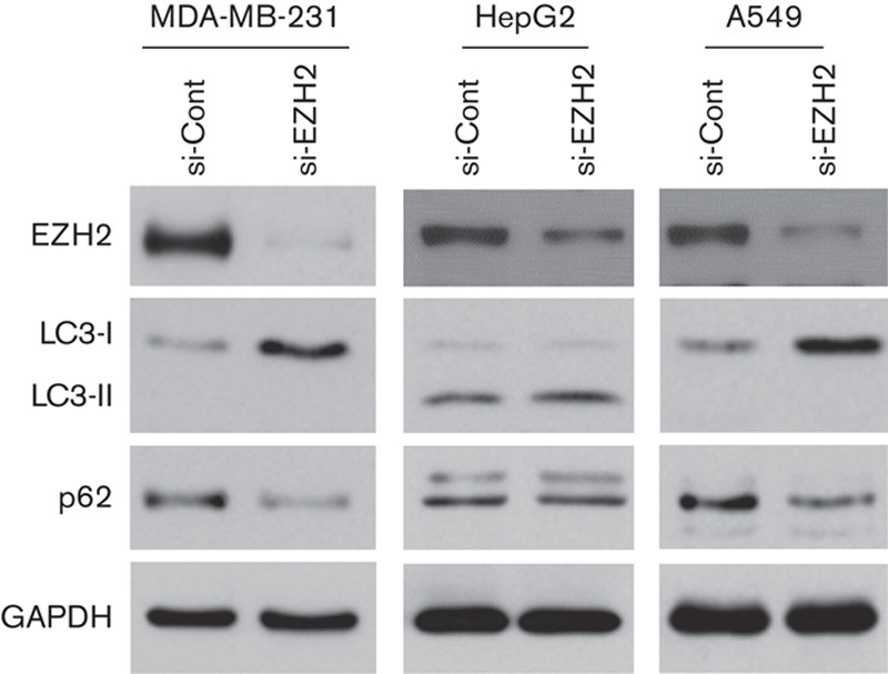 Effects of EZH2 knockdown on autophagy of cancer cells. MDA-MB-231, HepG2, and A549 cells were transiently transfected with EZH2 siRNA for 72 h, and then whole-cell lysates were subjected to a western blot analysis using antibodies against LC3B, p62, or GAPDH. EZH2, enhancer of zeste homolog 2; siRNA, small interfering RNA.