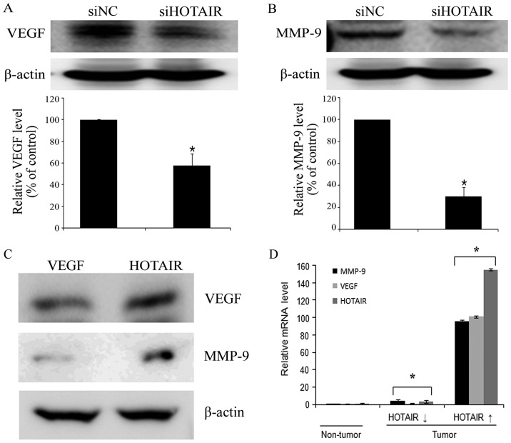 HOTAIR increases VEGF and MMP-9 expression in cervical cancer cells. Protein lysates were obtained from siHOTAIR and siNC-transfected HeLa cells 48 h post-transfection. (A) VEGF and (B) MMP-9 expression were analyzed by western blotting. (C) VEGF and MMP-9 levels were analyzed by western blotting in HOTAIR overexpression SiHa cells. Band intensities were quantitated, and VEGF and MMP-9 expression were normalized to that of β-actin. (D) VEGF and MMP-9 levels were determined by qRT-PCR in low groups and high HOTAIR expression groups of cervical cancer tissues. Each assay was performed in triplicate. Data are mean ± SD. * P