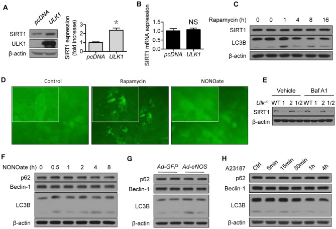 ULK1 regulates SIRT1 protein expression which is independent of autophagy. (A) HEK293 cells were transfected with pcDNA or ULK1 plasmid for 48 h; (B) HEK293 cells were transfected with pcDNA or ULK1 plasmid for 48 h. SIRT1 mRNA levels were determined by RT-PCR; (C) HUVECs were treated with rapamycin (2 µM) for the indicated time; (D) U20S cells which expressed GFP-LC3 reporter were treated with rapamycin (2 µM) or NONOate (50 µM) for 12 h; GFP-LC3 imaging was captured using fluorescent microscope according to instructions of the manufacturer, EMD Millipore; (E) MEF from the Ulk1 −/− , Ulk2 −/− , Ulk1/2 −/− , and WT mice were treated with bafilomycin A1 (10 nM) for 4 h; (F) HUVECs were treated with NONOate (50 µM) for the indicated time; (G) HUVECs were transfected with GFP or eNOS adenovirus for 48 h; (H) HUVECs were treated with A23187 (1 µM) for the indicated time. The western blots are representative of three independent experiments. *represent p