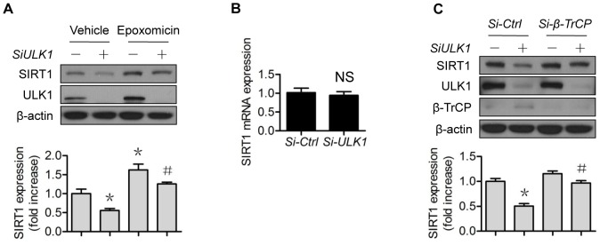 ULK1 regulates SIRT1 protein expression via 26S proteasomes. (A) HUVECs were transfected with control or ULK1 SiRNA for 48 h, then treated with epoxomicin (0.1 µM) for 4 h; (B) HUVECs were transfected with control or ULK1 siRNA for 48 h, SIRT1 mRNA levels were determined by RT-PCR; (C) HUVECs were transfected with control or ULK1 or β-TrCP1 siRNA for 48 h. The western blots are representative of three independent experiments. *represents p
