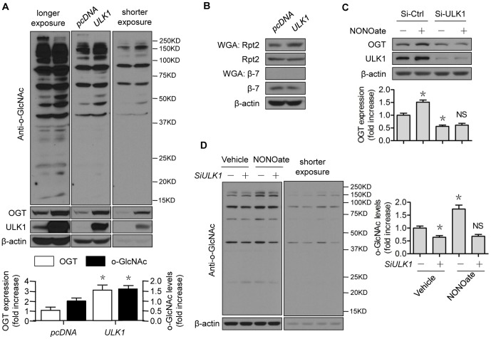 ULK1 regulates 26S proteasome functionality via OGT. (A–B) HEK293 cells were transfected with control or ULK1 plasmid for 48 h; (C–D) HUVECs were transfected with control or ULK1 siRNA for 48 h, then treated with NONOate (50 µM) for 4 h. The western blots are representative of three independent experiments. *represents p