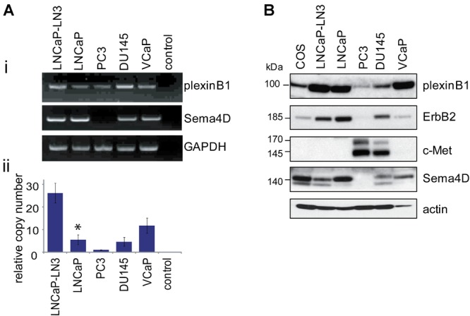 Endogenous expression of plexinB1, Sema4D, ErbB2, and c-Met in prostate cancer cells. A : ( i ) Endogenous expression of plexinB1 and Sema4D mRNA in prostate cancer cell lines detected by RTPCR. ii : Endogenous expression of plexinB1 in prostate cancer cell lines detected by quantitative real time RTPCR, * P