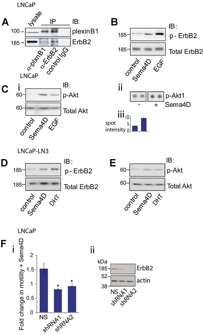 PlexinB1-ErbB2 signaling in LNCaP and LNCaP-LN3 cells. A : PlexinB1 interacts with ErbB2 in LNCaP cells. Lysates of LNCaP were co-immunoprecipitated with plexinB1, ErbB2, or control antibody and pulled down proteins were detected by Western blotting. B : Sema4D treatment induces phosphorylation of endogenous ErbB2 in LNCaP cells. LNCaP cells were stimulated for 20 min with control or Sema4D conditioned medium or EGF (500 ng/ml). ErbB2 phosphorylation was detected by Western blotting. C : Sema4D treatment induces phosphorylation of Akt in LNCaP cells. LNCaP cells were stimulated for 20 min with control or Sema4D conditioned medium or EGF (500 ng/ml). Akt phosphorylation was detected by Western blotting ( i ) or on an antibody array ( ii and iii ). D : Sema4D treatment induces phosphorylation of endogenous ErbB2 in LNCaP-LN3 cells. LNCaP-LN3 cells were stimulated for 20 min with control or Sema4D conditioned medium or DHT (1 nM). ErbB2 phosphorylation was detected by Western blotting. E : Sema4D treatment induces phosphorylation of Akt in LNCaP-LN3 cells. LNCaP-LN3 cells were stimulated for 20 min with control or Sema4D conditioned medium or DHT (1 nM). Akt phosphorylation was detected by Western blotting. F : Knockdown of ErbB2 expression in LNCaP cells blocks Sema4D-induced migration. i : Transwell motility assay of LNCaP cells expressing non-silencing (NS) shRNA or two different shRNAs to ErbB2. Migration of Sema4D-stimulated cells relative to unstimulated cells (* P
