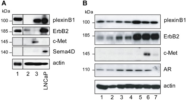 Endogenous expression of plexinB1, Sema4D, ErbB2, and c-Met in primary prostate cells. A : Endogenous expression of indicated proteins in primary cultures of benign prostatic epithelium from three different individuals. B : Endogenous protein expression in immortalized benign prostatic epithelial cells from seven different individuals. AR, androgen receptor.
