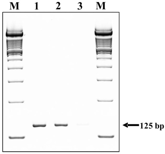 Detection of TLR4 mRNA expression on different kinds of pig cells by qRT-PCR analysis. Lane 1: pig peripheral blood mononuclear cells (PBMCs), lane 2: pig embryonic fibroblast cell line (PEFs_NCC1), lane 3: pig embryonic fibroblast cell line (PEFs_SV40), M: marker (100 bp DNA ladder). TLR4, toll-like receptor 4; qRT-PCR, quantitative real-time polymerase chain reaction.
