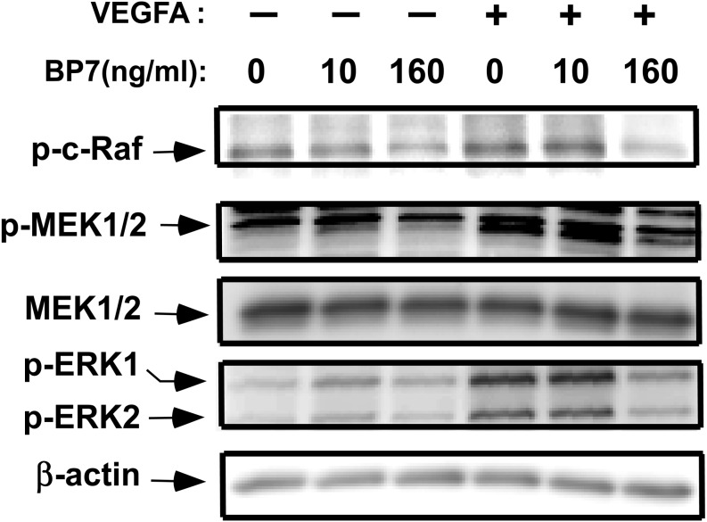 Effects of IGFBP7 on VEGFA-induced phosphorylation of mitogen-activated protein kinases in LECs. LECs were treated with VEGFA (10 ng/ml) for 20 min following incubation with IGFBP7 (10 or 160 ng/ml) for 24 h. Cell lysate was subjected to Western blot analysis using the following primary antibodies: phospho-c-Raf (Ser338), phospho-mitogen-activated protein kinase kinase (MEK)1/2 (Ser217/221), phospho-ERK1/2 (Th202/Tyr204), and MEK1/2. Representative blots are shown. β-actin served as a loading control. BP7: IGFBP7.