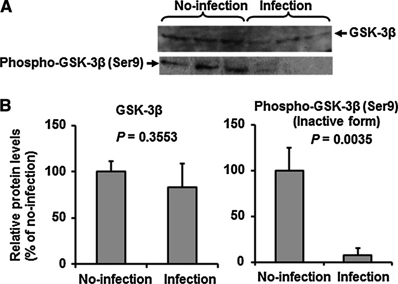 IAV infection induces suppression of phosphorylated GSK-3β in HUVECs. A. Representative immunoblots (from three separate experiments) of total GSK-3β and phosphor-GSK-3β (Ser9) in cell lysates (20 μg protein/lane) of control (uninfected) or IAV-infected HUVECs. B. Relative levels of total GSK-3β and phosphor-GSK-3β (Ser9) in the blot in panel A (n = 3). Data are mean ± SD. Statistical analyses were conducted using the unpaired t -test