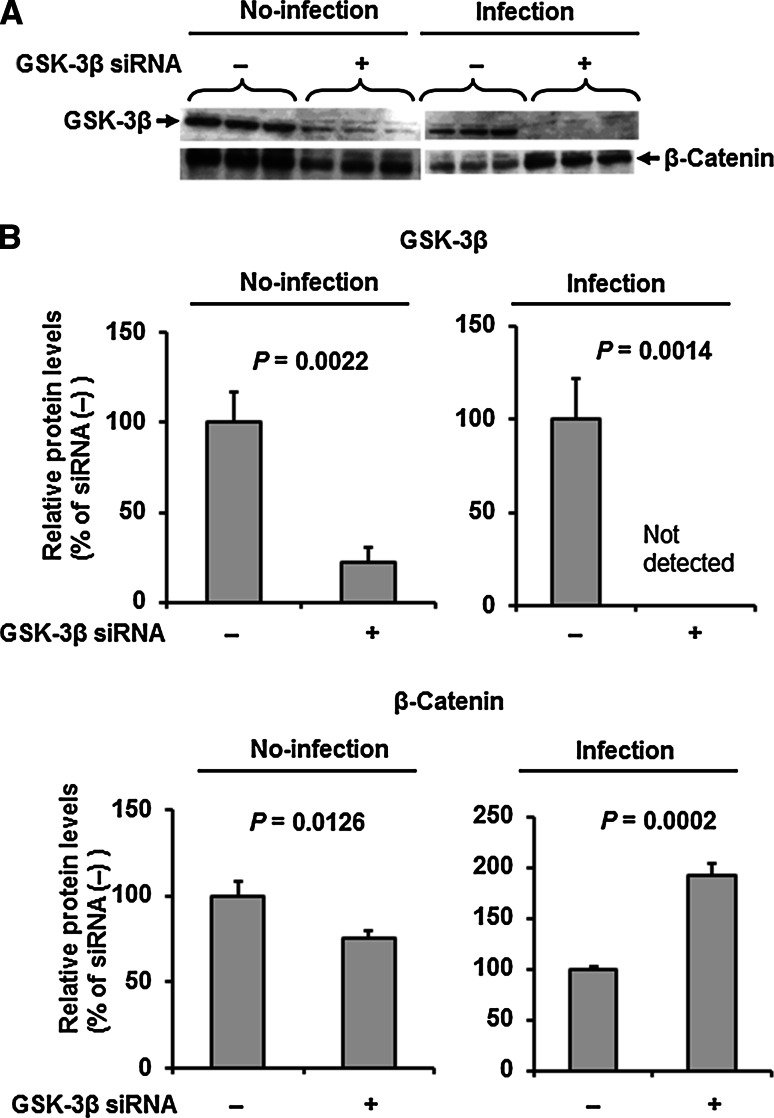 GSK-3β knockdown protects against IAV-induced suppression of β-catenin. A. Representative immunoblots (from three separate experiments) of GSK-3β and β-catenin in cell lysates (20 μg protein/lane) of HUVECs pre-treated with or without GSK-3β knockdown under control (no-infection) and IAV-infection conditions. B. Relative levels of GSK-3β and β-catenin in the bolt in panel A (n = 3). Differences between groups were analyzed using the unpaired t -test