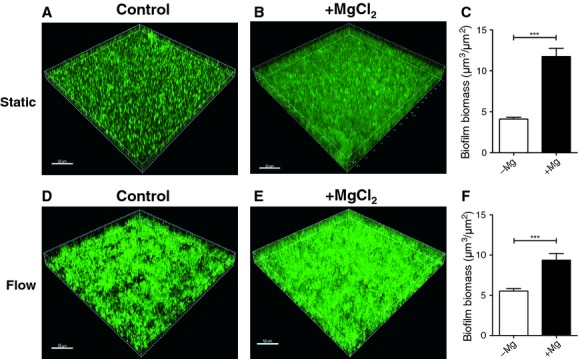 Mg 2+ enhances NTHi biofilm formation. Biofilms were formed by NTHi 502 in CDM in the absence (A and D) or presence (B and E) of 2.5 mmol/L Mg 2+ using static (A–C) or flow cell (D–F) models of NTHi biofilm develpment. Biofilms were stained with SYTO9® and imaged by CLSM (A, B, D, E). Biofilm biomass was quantitated from CLSM images with COMSTAT (C and F). Scale bar 50 μ m. NTHi, nontypeable Hemophilus influenzae ; CDM, chemically defined medium pH 9; CLSM, confocal laser scanning microscopy.