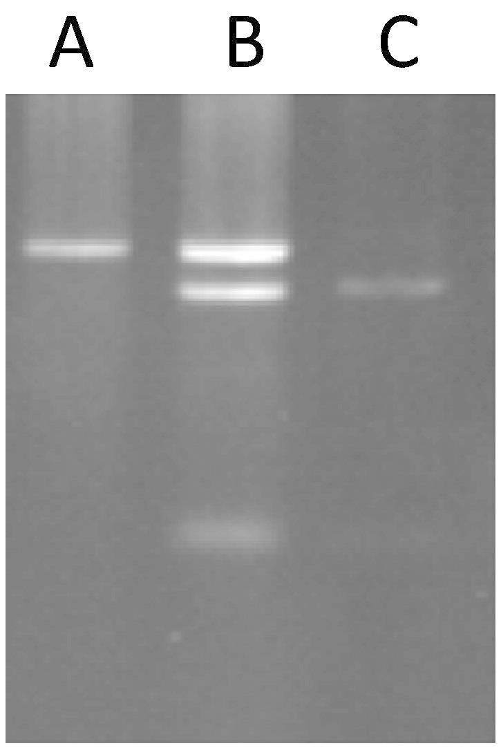 Digestion of PCR product. The PCR products were digested with ApaI and were run on gel (3%). A; TT Homozygote (undigested fragment 1195 bp). B; CT Heterozygote (undigested and digested fragments 1195 bp, 1131 bp and 64 bp). C; CC Homozygote (digested fragments 1131 bp and 64 bp).