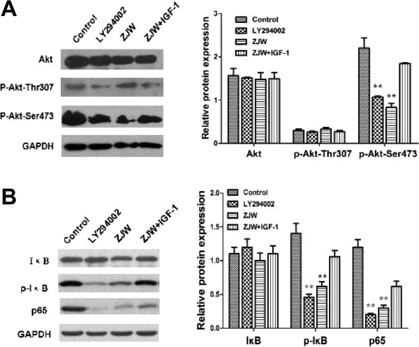 ZJW suppresses P-gp mediated MDR by inhibiting activation of Akt (Ser473)/IκB phosphorylation (Ser473) in vitro . (A B) Western blotting assay was carried out to detect the level of Akt, phosphorylation of Akt (Thr307/Ser473), IκB, p65, and phosphorylation of IκB in HCT116/L-OHP cells treated with LY294002 (20 μM, 2 h), ZJW (50 μg/mL, 48 h), and a combination of ZJW (50 μg/mL, 48 h) and IGF-1 (100 ng/mL, 48 h). GAPDH was used to ensure equal loading of proteins in each lane. Data are means ± SD of values from triplicate experiments. ** P