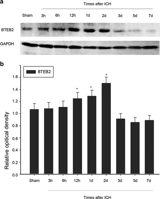 BTEB2 protein expression following ICH. Western blot was performed to study the protein level of BTEB2 surrounding the hematoma at different survival times ( a ). Quantification graphs of the intensity of staining of BTEB2 to GAPDH at each time point ( b ). Data are presented as mean ± SEM ( n = 3, * p