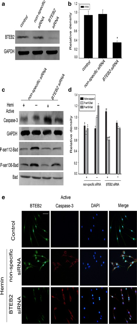 BTEB2 prevents neuronal apoptosis through Bad phosphorylation. Western blot showed siRNA knocked down BTEB2 expression in PC12 cells ( a ). Knocking down BTEB2 induced increasing levels of active caspase-3 and reduced the levels of P-ser112-bad and P-ser136-bad in hemin-treated PC12 cells ( c ). The bar chart indicates the density of active caspase-3/BTEB2/P-ser112-Bad/P-ser136-Bad versus GAPDH ( b , d ). Data are presented as means ± SEM (* p