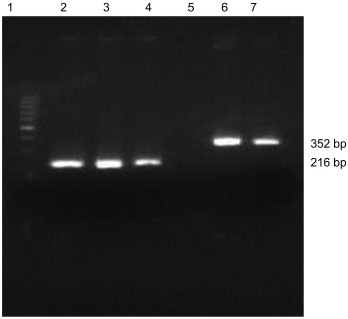 Hepatitis B viral virus X protein (HBx) X1 and X2 fragments amplified by PCR from AH109-pAS2-1-X1 and AH109-pAS2-1-X2. X1 and X2 fragments of the expected size can be seen after gel electrophoresis (0.6% agarose). Lane 1, 100-bp DNA ladder; lanes 2–4, HBx X1 (216 bp) amplified with primers P1 and P2; lane 5, negative controls; lanes 6 and 7, HBx X2 (352 bp) amplified with primers P1 and P3.