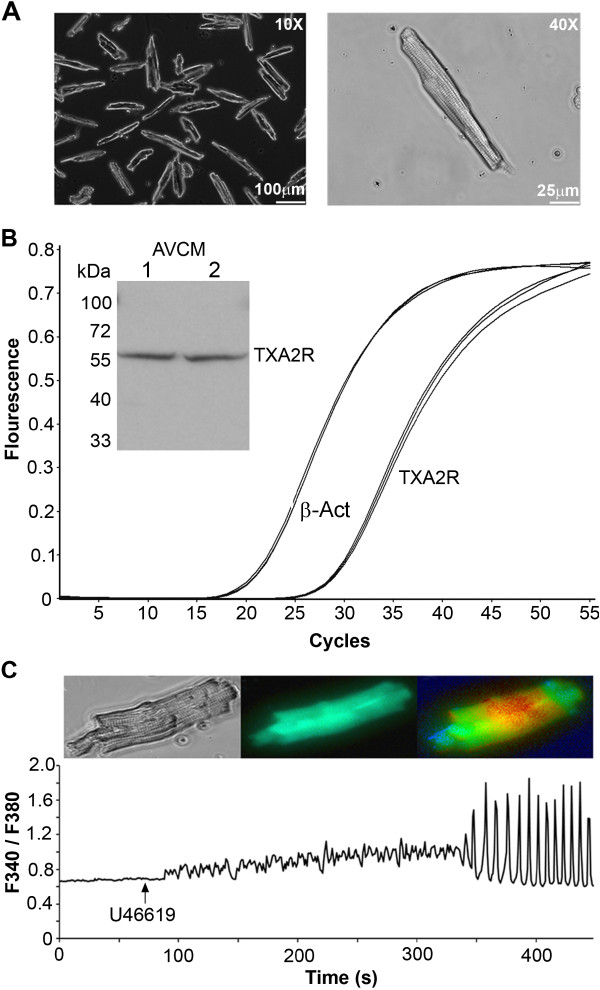 TXA2R mRNA and protein are present in AVCMs. A . 10x and 40x images of isolated AVCMs from male mice after 24 h in culture. Cells remain in high density; maintain membrane integrity and show clear striations associated with healthy cardiomyocytes following 24 h in culture. B . Real-time RT-PCR of RNA isolated from AVCMs showing the presence of TXA2R. Similar TXA2R gene expression was also observed with HL-1 cells. Inset shows TXA2R protein from isolated AVCMs detected by western blot. C . Representative data of 10 μM U46619-induced increases in intracellular Ca 2+ in cardiomyocytes as measured by Fura-2 AM. This demonstrates that the TXA2R in mouse AVCMs is functional and behaves similarly to our previous reports in the rabbit [ 16 ].