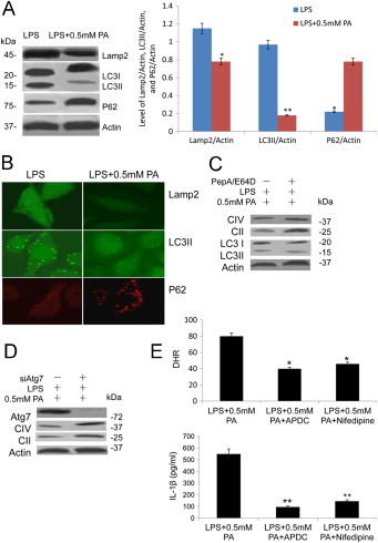 PA blocked proper mitophagy activation in macrophage cells. (A) PA stimulated autophagy activation associated proteins LC3II/LC3I, P62, Lamp2, and CTSB expression were analyzed by immunoblotting, β-actin as a control; analysis of Lamp2, LC3II, and P62 levels from macrophage cells were on the right panel (*, p