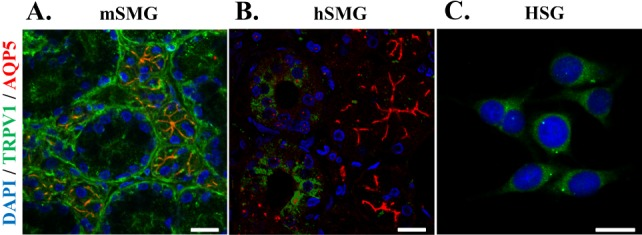 Distribution of TRPV1 in salivary gland epithelial cells (SGEC). Representative immunofluorescence labeling of TRPV1 in mSMG (A), hSMG (B), and HSG cells (C). SMGs sections and HSG were immunostained with anti-TRPV1 antibody and AQP5 antibody, then incubated with <t>Alexa</t> Fluor-linked anti-rabbit <t>IgG</t> (red) and Alexa Fluor-linked anti-goat IgG (green). Nuclei (blue) were labeled with 4,6-diamidino-2-phenylindole. (A) TRPV1were mainly detected in apical membrane in acinar cells and in basolateral membrane in ductal cells. AQP5 was used as a marker for acinar cells that was exclusively expressed in the apical membrane of acinar cells (red color). The merged orange color indicates that expression of TRPV1 at the apical membrane in acinar cells. (B) In hSMG, higher expression levels of TRPV1 was observed in ductal cells compared to acinar cells. (C) In HSG cells, TRPV1 was widespread in the cytoplasm. Scale bar indicates 20 µm. The results are representative of four independent experiments.