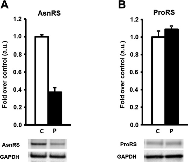 Asparaginyl-tRNA synthetase (AsnRS) and prolyl-tRNA synthetase (ProRS) abundance in control and patients cultured fibroblasts assessed by Western blotting. AsnRS (A) and ProRS (B) protein abundance in controls versus patient. Data are normalized to glyceraldehyde-3-phosphate dehydrogenase (GAPDH) abundance and presented as mean ± SE. Controls n = 3–4, with 1–5 independent repeats each. Patient n = 1, with four independent repeats each.