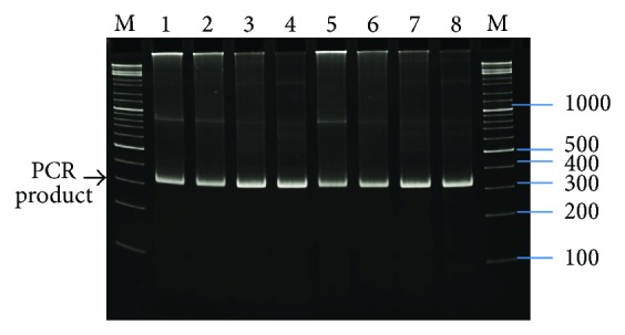 PCR products of UBP4′: M-marker (bp) GeneRuler DNA Ladder Mix (Fermentas Life Sciences), lanes 1–8 UBP4′ gene (276 bp UBP4′ length and 26 bp for restriction enzymes sequence = 302 bp) PCR product: lanes 1, 2: PCR reaction with Biotools DNA polymerase and 23 cycles, lanes 3, 4: PCR reaction with Biotools DNA polymerase and 29 cycles, lanes 5, 6: PCR reaction with Biotools DNA polymerase and 29 cycles, and lanes 7, 8: PCR reaction with Taq DNA polymerase and 29 cycles.