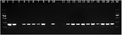 Detection of MEV in clinical samples by nanoPCR assay. Lane M: DL2000 <t>DNA</t> Maker (TaKaRa, <t>Dalian,</t> China); lane 1: MEV genome as template; lane 2: plasmid DNA as template; lanes 3: negtive control, lanes 4–21: DNA from clinical fecal samples as template.