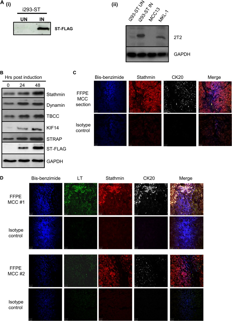 MCPyV ST expression leads to the differential expression of proteins involved in microtubule-associated cytoskeletal organization and dynamics. (A) (i) i293-ST cells were grown in DMEM with R0K0 and induced (IN) for 24 h or grown in DMEM with R6K4 and remained uninduced (UN). Cell lysates were analyzed by immunoblotting with a FLAG-specific antibody. (ii) To confirm that induced levels of MCPyV ST in i293-ST cells are representative of ST expression in the MCPyV-positive MCC cell lines, immunoblotting was performed using an MCPyV T-specific antibody comparing cell lysates from 1 × 10 5 cells of uninduced and induced i293-ST, MCC13, and MKL-1 cells. (B) i293-ST cells remained uninduced or were incubated for either 24 or 48 h in the presence of doxycycline hyclate. After induction, cell lysates were analyzed by immunoblotting using a FLAG-specific antibody and a range of microtubule-associated-specific antibodies highlighted by quantitative proteomic analysis. GAPDH was used as a measure of equal loading. (C) FFPE sections of a primary MCC tumor were stained with stathmin- and CK20-specific antibodies or an isotype negative control. After washing, sections were incubated with Alexa Fluor-labeled secondary antibodies. Nuclear staining was performed with bis-benzimide. Slides were then analyzed using a Zeiss LSM 510 confocal laser scanning microscope. (D) FFPE sections of two additional primary MCC tumors were stained with stathmin-, MCPyV LT-, and CK20-specific antibodies or an isotype negative control. After washing, sections were incubated with Alexa Fluor-labeled secondary antibodies. Nuclear staining was labeled using bis-benzimide. Slides were then analyzed using a Zeiss LSM 510 confocal laser scanning microscope.
