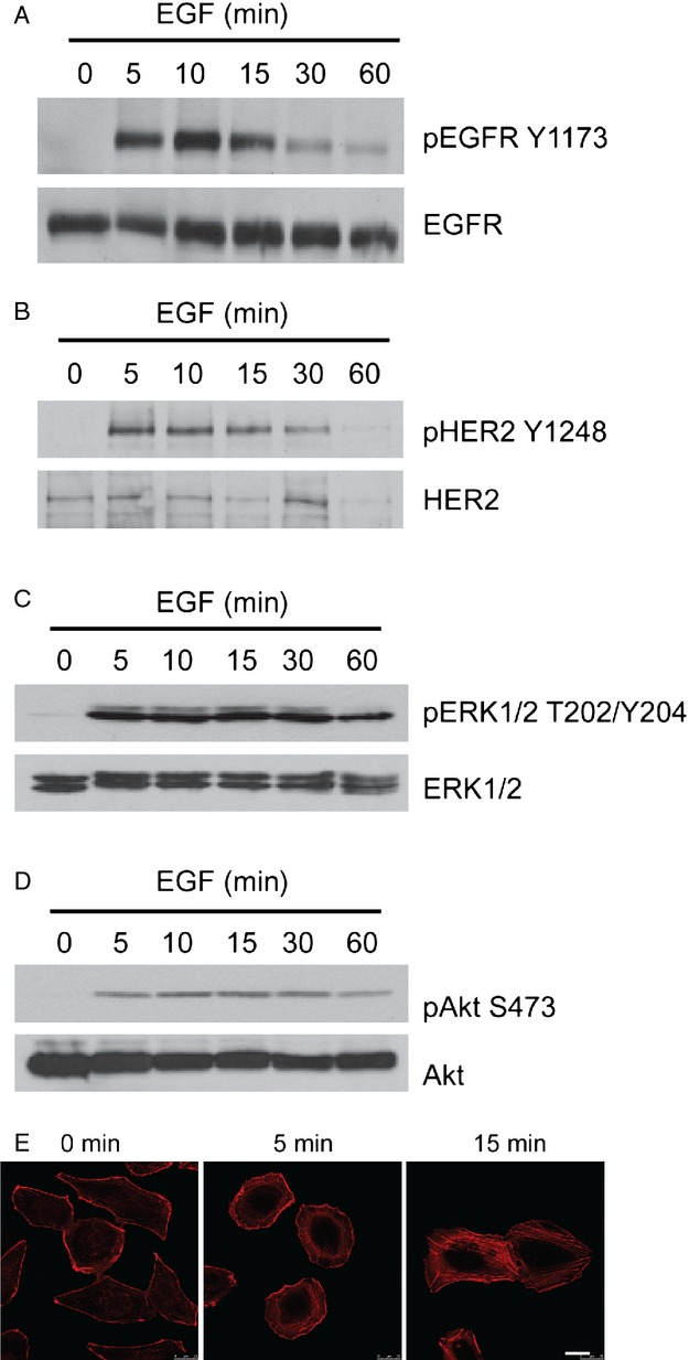 Activation of EGFR and HER2/ErbB2 signaling in DAOY cells. DAOY cells in serum-free medium were treated with 10 ng/mL EGF for the indicated times. Activation of EGFR (A) and HER2/ErbB2 (B) was determined by immunoblotting using antiphospho-EGFR (Tyr1173) and antiphospho-HER2 antibodies, respectively, which recognize only the activated form of the receptor. Immunoblots for total EGFR (A) and HER2 (B) confirm equal loading. Erk1/2 and Akt activation as determined by immunoblotting with phosphorylation-specific antibodies against Erk1/2 (T202/Y204) (C) and Akt (S473) (D), respectively. Equal loading was confirmed with antibodies for total Erk1/2 and Akt. (E) Phalloidin staining for filamentous actin in EGF-treated DAOY cells. Bar, 20 μ m. EGF, epidermal growth factor.