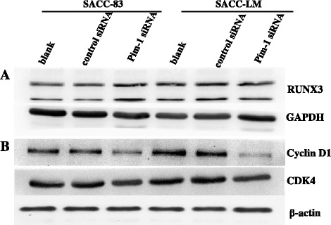 Pim-1 depletion altered the RUNX3, <t>Cyclin</t> D1 and CDK4 levels. A . Western blot analysis showed the expression of RUNX3 protein in SACC cells after Pim-1 siRNA transfection. The expression of GAPDH was used as a loading control. B . Western blot analysis showed the expression Cyclin D1 and CDK4 protein in SACC cells after Pim-1 siRNA transfection. The expression of β-actin was used as a loading control.