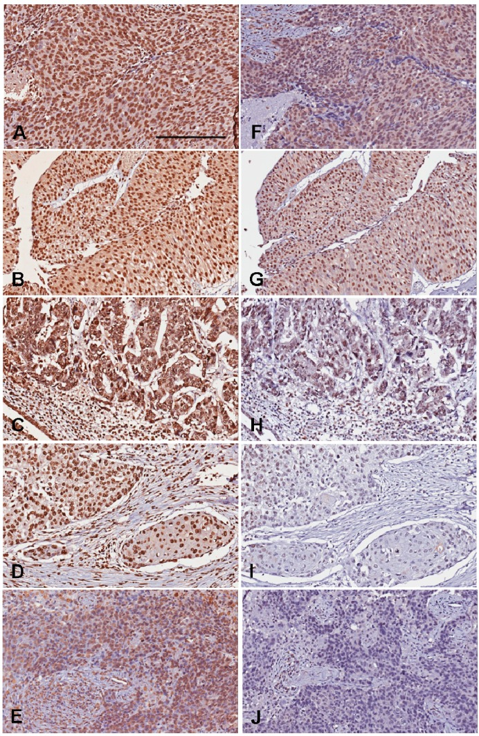 Representative photography of 5-MeC and DNMT1 immunohistochemistry. The 5-MeC photography in A – E ; The DNMT1 photos in F – J . ( A , F ) High-grade urothelial carcinoma showing high levels of both 5-MeC and DNMT1; ( B , G ) Low-grade urothelial carcinoma showing high levels of both 5-MeC and DNMT1; ( C , H ) High-grade urothelial carcinoma with glandular differentiation, showing high 5-MeC but low DNMT1 levels. ( D , I ) High-grade urothelial carcinoma with squamous differentiation, showing low levels of both 5-MeC and DNMT1; ( E , J ) High-grade urothelial carcinoma showing low levels of both 5-MeC and DNMT1. Bar = 200 µm.