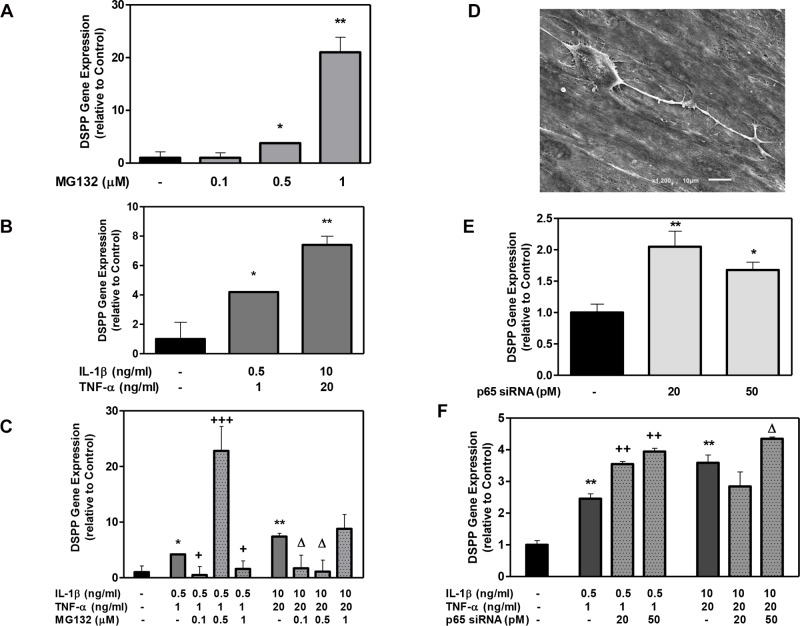 The effect of MG132 protease inhibitor and p65 siRNA on Dentin Sialophosphoprotein (DSPP) gene expression in DPSCs with low- and high-cytokine doses. DPSCs were exposed to various MG132 or p65 siRNA (A and E, respectively), cytokine dose alone (B), and cytokine dose in the presence of MG132 or p65 siRNA (C and F, respectively) for 7 days for the examination of odontoblastic gene marker DSPP. The odontoblastic cell morphology was examined using scanning electron microscopy after 12 days (D) (for treatment IL-1β (0.5) + TNFα (1) + MG132 (0.5)). DSPP mRNA was assessed using RT-PCR. Data are presented as the mean + S. E. M. of triplicate measures from triplicate experiments. Symbols: Asterisks (*) indicate statistical comparison with control result; plus signs (+) indicate statistical comparison with IL-1β (0.5 ng/ml) and TNFα (1.0 ng/ml) treatment (low cytokine dose); triangle (Δ) indicates statistical comparison with IL-1β (10.0 ng/ml) and TNFα (20.0 ng/ml) treatment (high cytokine dose). Statistical comparison was made using ANOVA testing with Dunnett's posthoc analysis. Statistical significance was represented by *, +, or Δ for p