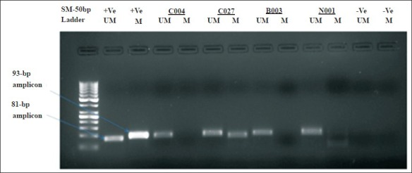 Methylation analysis of MGMT gene. Agarose gel showing representative product of MSP analysis of MGMT gene in epithelial ovarian tumours. In each case, CpGenome universal methylated genomic DNA was used as a positive (+ve) control for methylated alleles and peripheral blood mononuclear cell (PBMC) DNA from normal healthy subjects as positive control for unmethylated alleles. PCR products in lane UM indicate the presence of an unmethylated allele, whereas PCR products in lane M indicate the presence of a methylated allele. C004, C027 are carcinomas, B003 is benign adenoma and N001 is a normal tissue. No template control was used as a negative control.