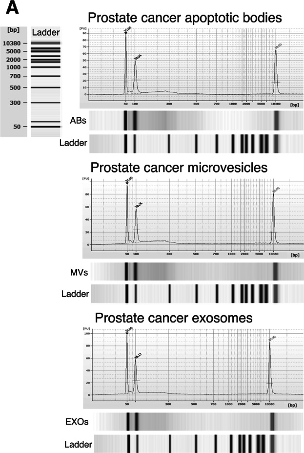 Bioanalyzer analysis of gDNA in plasma-derived EVs from prostate cancer patients. Pre-amplified EV-derived DNA isolated from 2 mL of plasma together with DNA markers were analyzed using a 2100 Bioanalyzer. Vertical axis (FU) represents the fluorescent units and horizontal axis shows the number of base pairs. The two picks at 50 and 10,380 bp represent the DNA markers. Apoptotic bodies (ABs); microvesicles (MVs); exosomes (EXOs). Representative images of prostate cancer patients are showed.