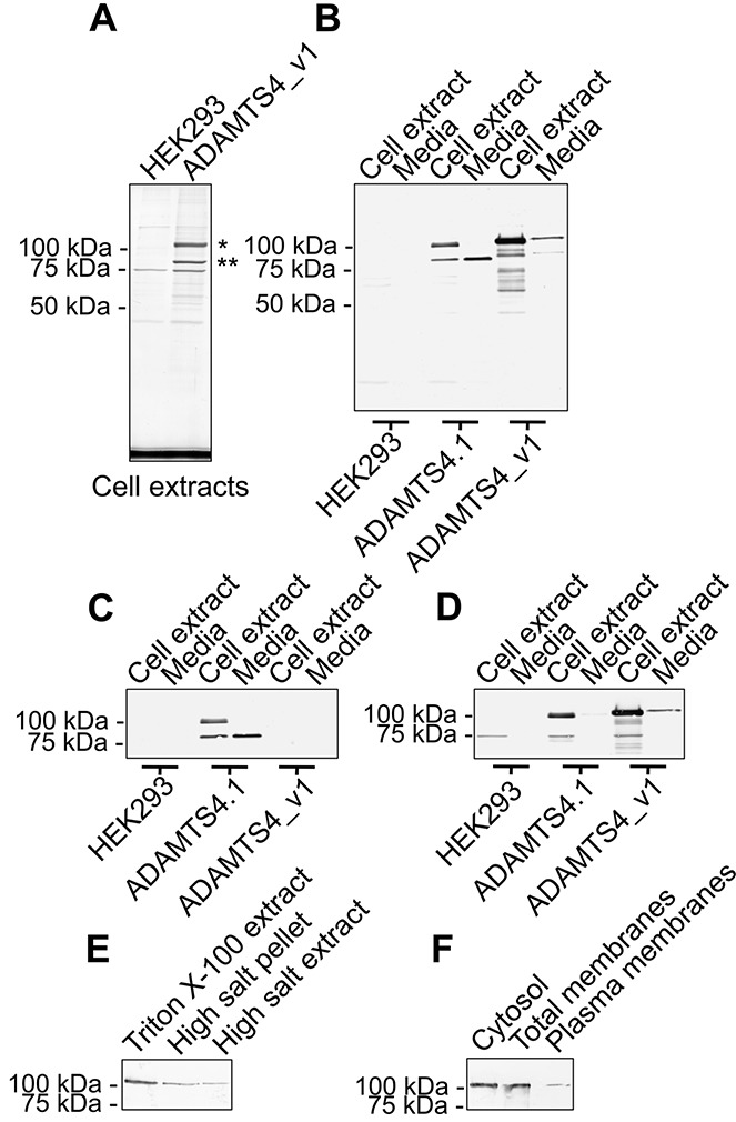 Characterization of recombinant ADAMTS-4_v1. A, Blot of anti–FLAG M2 monoclonal antibody (mAb) immunoprecipitates from Triton X-100 extracts of untransfected HEK 293 cells and ADAMTS4_v1 -pCEP4–transfected HEK 293 cells, following sodium dodecyl sulfate–polyacrylamide gel electrophoresis and Coomassie brilliant blue R250 staining. The band marked with an asterisk yielded an N-terminal amino acid sequence of ASPLPRE…, whereas no sequence was obtained from the band marked with a double asterisk. B–D, Triplicate Western blots of anti–FLAG M2 mAb immunoprecipitates from Triton X-100 cell extracts and conditioned media obtained from untransfected, ADAMTS4.1 -pCEP4–transfected, or ADAMTS4_v1 -pCEP4–transfected HEK 293 cells, probed with anti–FLAG M2 mAb (B), a rabbit antiserum (ab28285) to the carboxyl-terminus of ADAMTS-4 (C), or a rabbit antiserum (ab39201) to the pro domain of ADAMTS-4 (D). E, Western blot of anti–FLAG M2 mAb immunoprecipitates from a Triton X-100 extract of an equal number of Tris buffered saline–washed ADAMTS4_v1 -pCEP4–transfected HEK 293 cells (Triton X-100 extract), a Triton X-100 extract of the pellet after high salt extraction (high salt pellet), and a 1 M NaCl, 50 m M Tris HCl, pH 7.4, extract of ADAMTS4_v1 -pCEP4–transfected HEK 293 cells (high salt extract). F, Western blot probed with anti–FLAG M2 mAb using a plasma membrane protein extraction kit to prepare cytosol, total membranes, and plasma membranes from ADAMTS4_v1 -pCEP4–transfected HEK 293 cells prior to anti–FLAG M2 mAb immunoprecipitation.