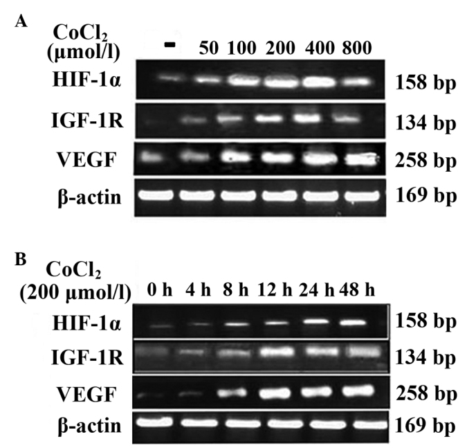 Effect of CoCl 2 - induced hypoxia on the expression of HIF-1α, IGF-1R and VEGF mRNA. (A) The HepG2 cells were treated with 0, 50, 100, 200, 400 or 800 μmol/l CoCl 2 for 12 h. (B) The HepG2 cells were treated for 0, 4, 8, 12, 24 or 48 h with 200 μmol/l CoCl 2 . A significant difference in HIF-1α, IGF-1R and VEGF protein expression was observed when cells were treated with 200 and 400 μmol/l CoCl 2 , and for 12, 24 and 48 h, compared with the control (P