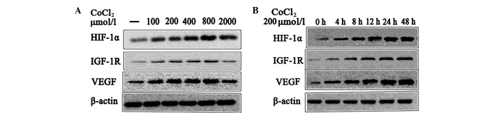 Effect of CoCl 2 -induced hypoxia on HIF-1α, IGF-1R and VEGF protein expression. (A) The HepG2 cells were treated with 0, 50, 100, 200, 400 or 800 μmol/l CoCl 2 for 12 h. (B) The HepG2 cells were treated for 0,4,8,12, 24 or 48 h with 200 μmol/l CoCl 2 . A significant difference in HIF-1α, IGF-1R and VEGF mRNA expression was observed when cells were treated with 200 and 400 μmol/l CoCl 2 , and for 8, 12, 24 and 48 h, compared with the control (P